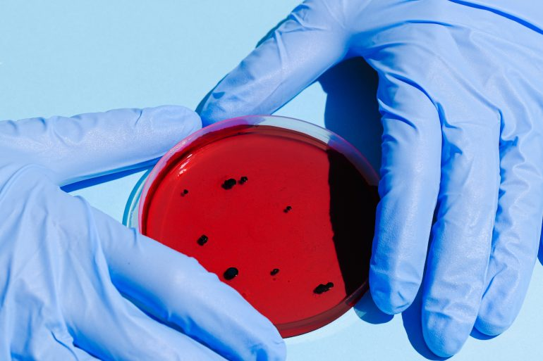 Person holds a petri dish with blue goves